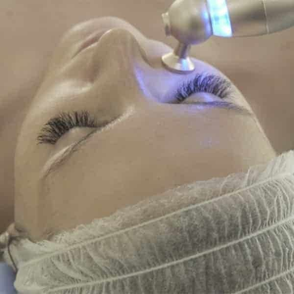 Advanced oxygen Facial